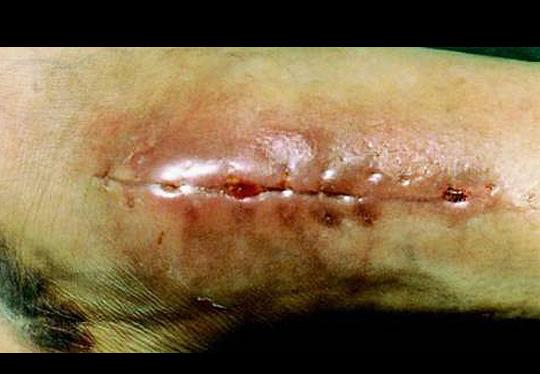 sidhdha - surgery4